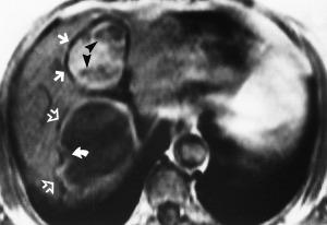 http://pubs.rsna.org/doi/full/10.1148/radiographics.20.3.g00ma06795. Figure 12.