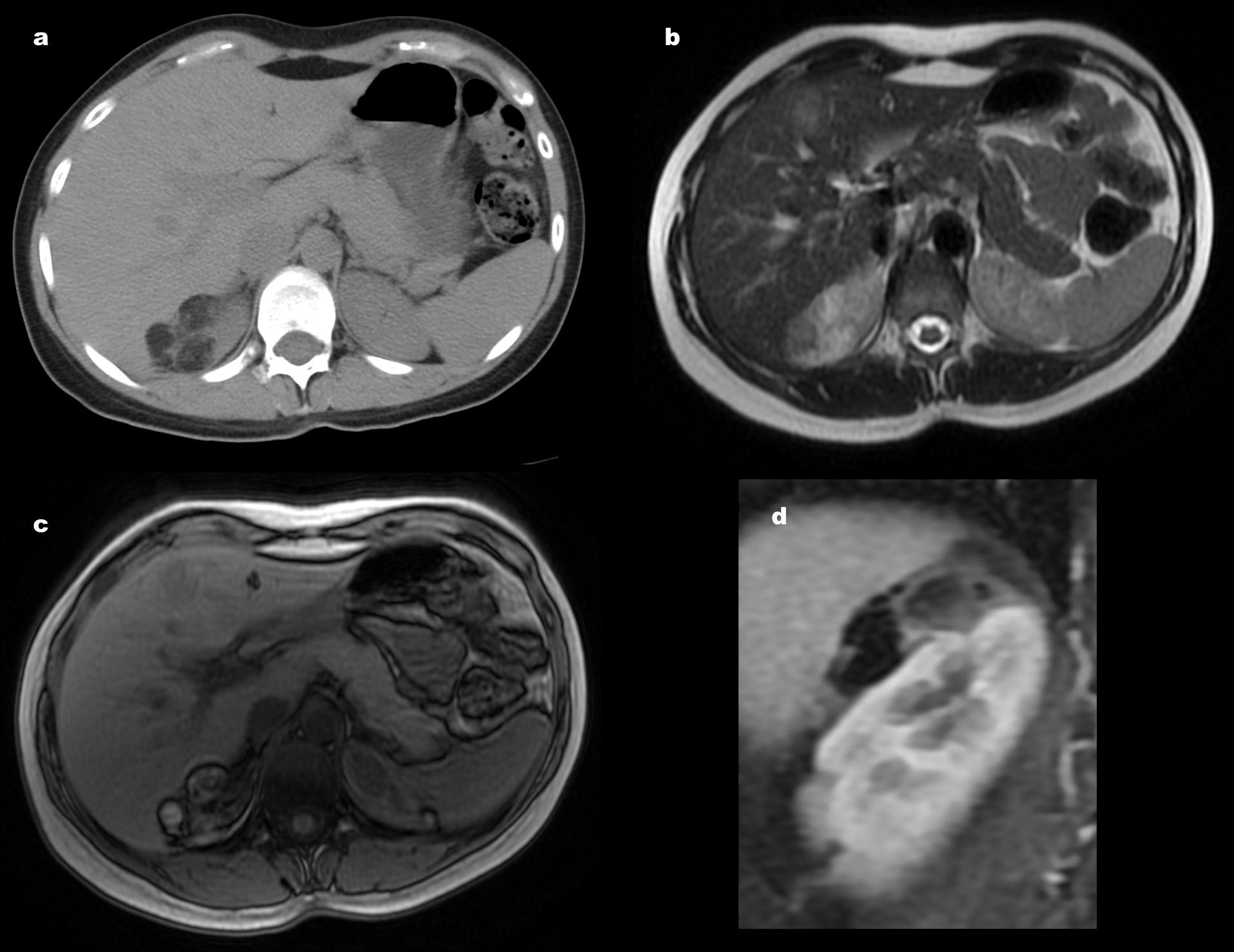Angiomiolipoma Renal Clásico y Pobre en grasa. Diagnóstico ...
