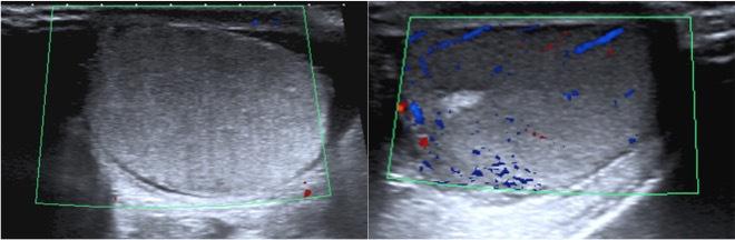 Ausencia de capatación de flujo Doppler color en testículo derecho.