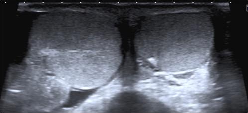 Asimetría de tamaño. Corte axial. Observar el notable aumento de tamaño del testículo derecho.