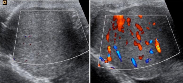 A la izquierda se observa ausencia de captación de señal Doppler color. A la derecha, se observa el testículo hiperémico tras detorsión manual.