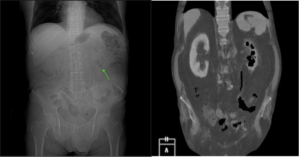 IZQ: Scout de TC abdominal donde se observa una burbuja aérea proyectada sobre el polo inferior del riñón izquierdo. Derecha: Reconstrucción coronal de TC abdominal donde se confirma el hallazgo en el contexto de una pielonefritis enfisematosa.