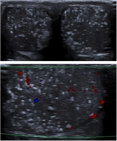 Microlitiasis intraparenquimatosas.