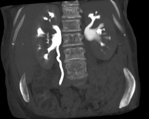 TC con contraste en fase excretora. Se observan signos de ectasia y retraso en la evacuación de contraste del riñón izquierdo.