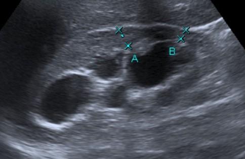 Se observa ectasia del sistema pielocalicila con disminución del grosor cortical. Hidronefrosis severa grado IV.