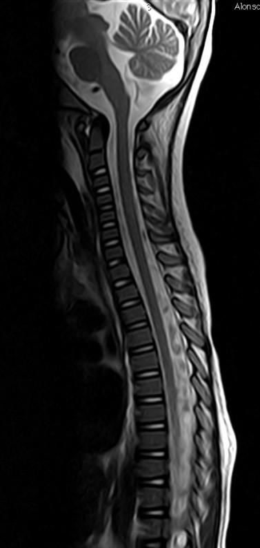 Otro paciente. Sagital T2 de columna: no hay signos de afectación.