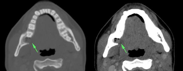 Ventana de hueso: es muy importante para identificar patología que afecte la mandíbula (abscesos, osteomileitis) y diferenciarla de otras entidades. En este caso vemos como la flecha señala un lugar de extracción de una pieza dentaria. En la imagen de la derecha no se observan abscesos ni otros signos inflamatorios sugieran un proceso infeccioso con destrucción ósea asociada.