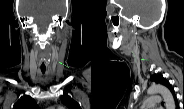 Reconsstrucciones cornal y sagital. El émbolo tiene una longitud de unos 3.4 cm aprox. En el estudio del tórax (no se muestra) no se evidenciaron alteraciones.