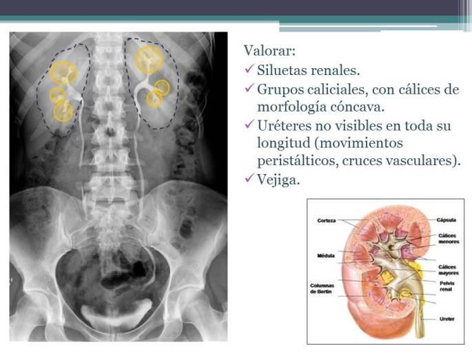 Diapositiva3_20