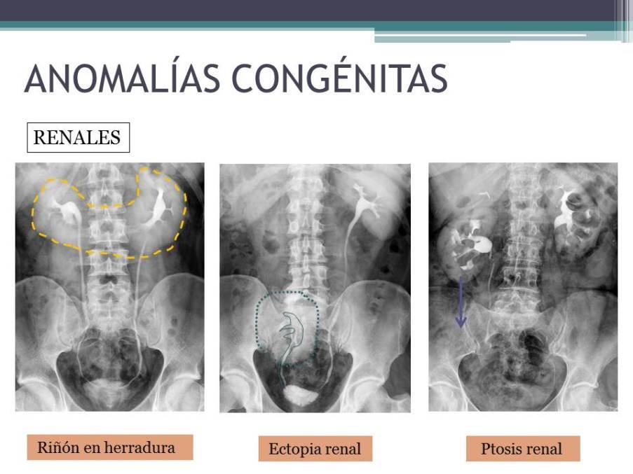 Diapositiva8_11