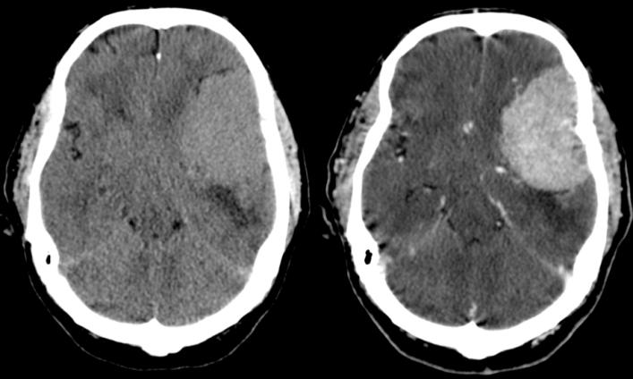 Meningioma de gran tamaño frontoparietotemporal izquierdo. Es ligeramente hiperdensa con respecto al parénquima adyacente. Asocia edema vasogénico perilesional y produce efecto masa. Tras administración de contraste se observa un realce intenso homogéneo.