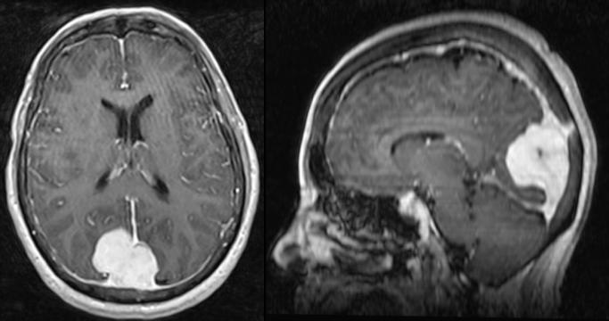 Mismo paciente que en la imagen anterior. El meningioma se hace evidente tras la RM con contraste.
