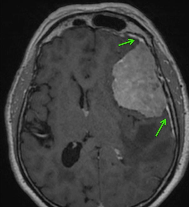 Las flechas verdes indican engrosamiento y realce de la duramadre adyacente a la lesión.