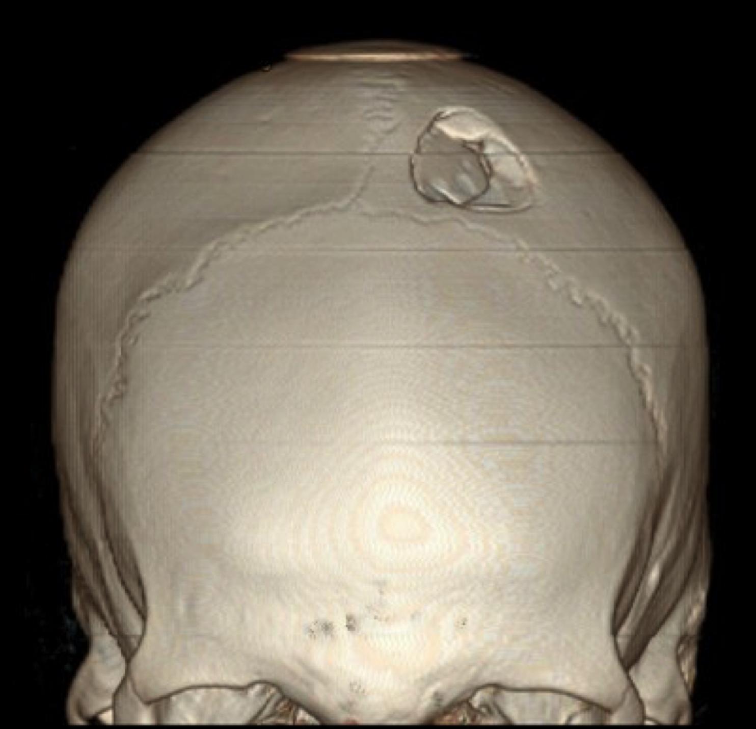 Трещина на черепе у ребенка фото