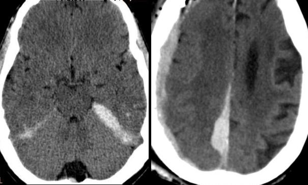 Se observa sandrado subdural en la hoz del cerebro y tentorio.