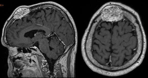meningioma óseo.png
