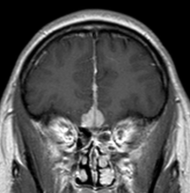 Menignioma frontal en la linea media con engrosamiento dural.