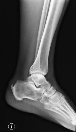Deformida ósea en calcáneo.